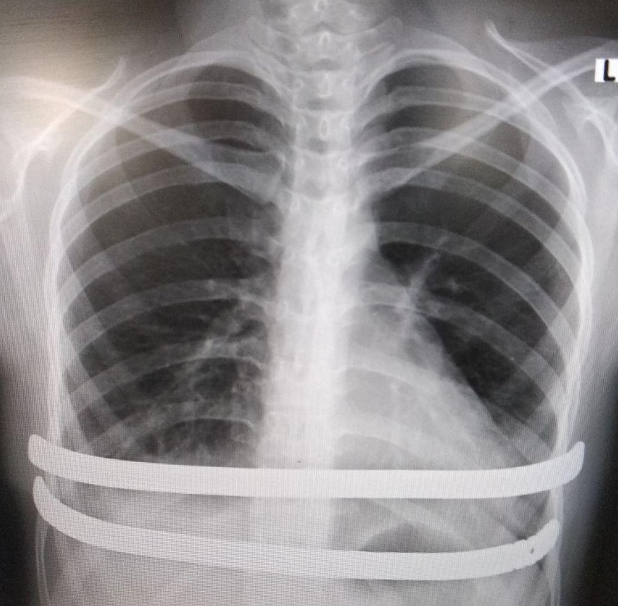 рентген после операции Насса