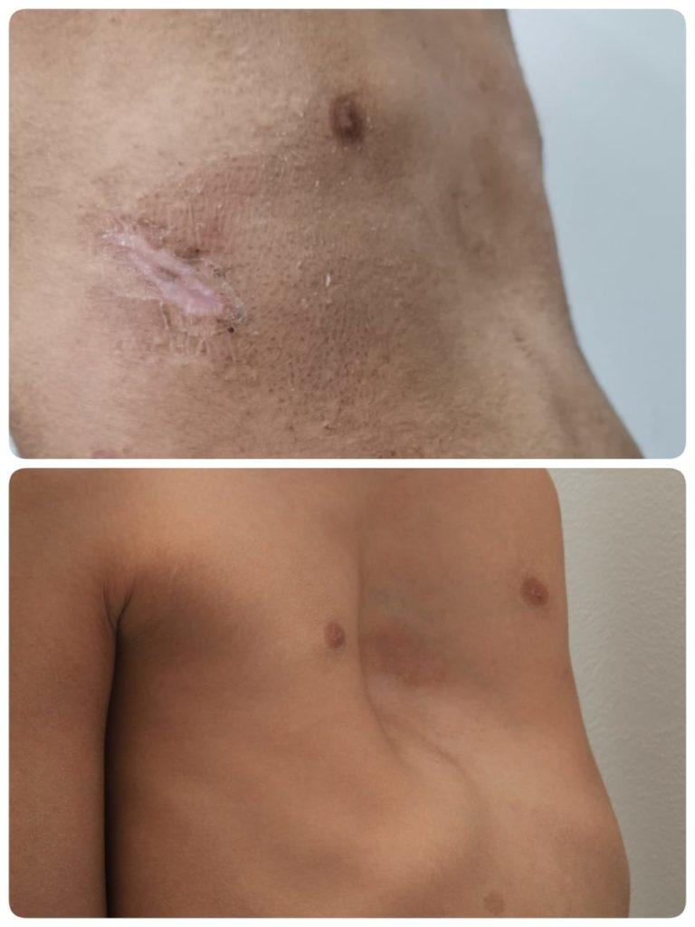 Воронкообразная деформация грудной клетки фото