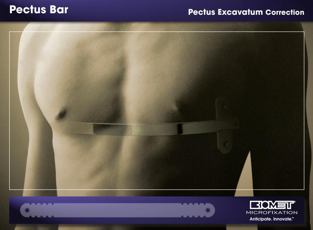 biomet pectus bar