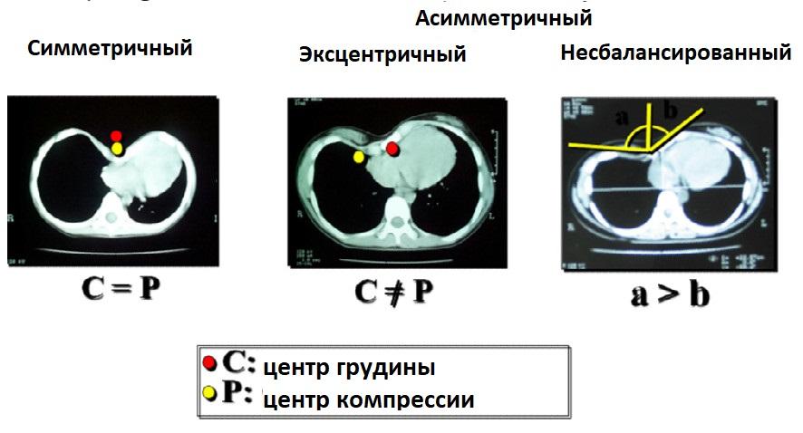 классификация воронкообразной деформации грудной клетки