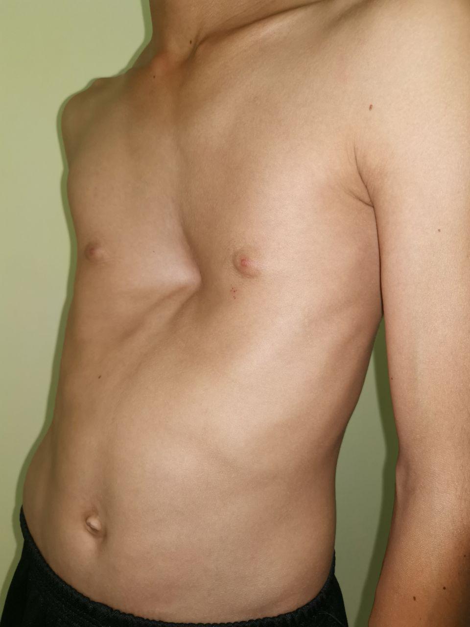 воронкообразная деформация грудной клетки до операция