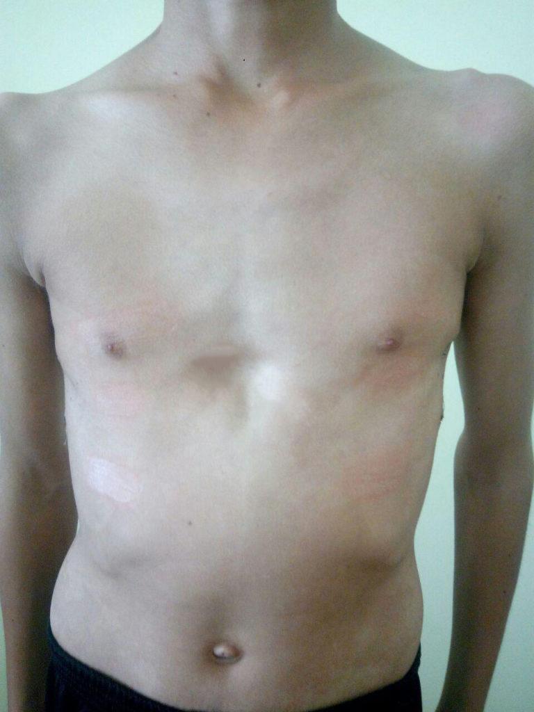 воронкообразная деформация грудной клетки после операция