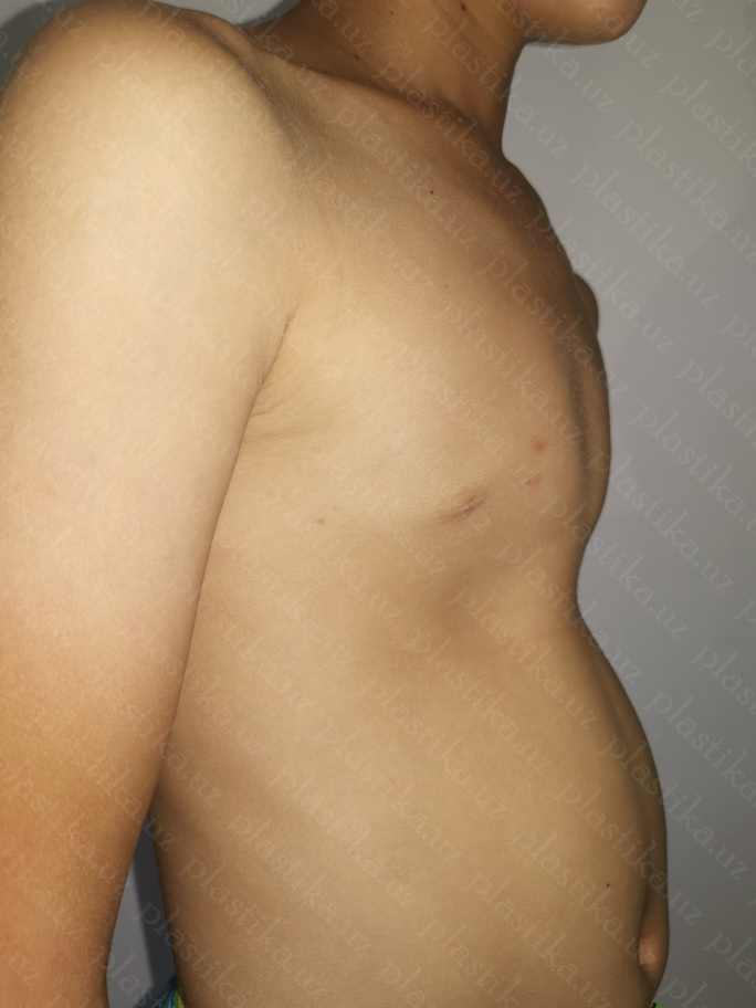 куриная грудь