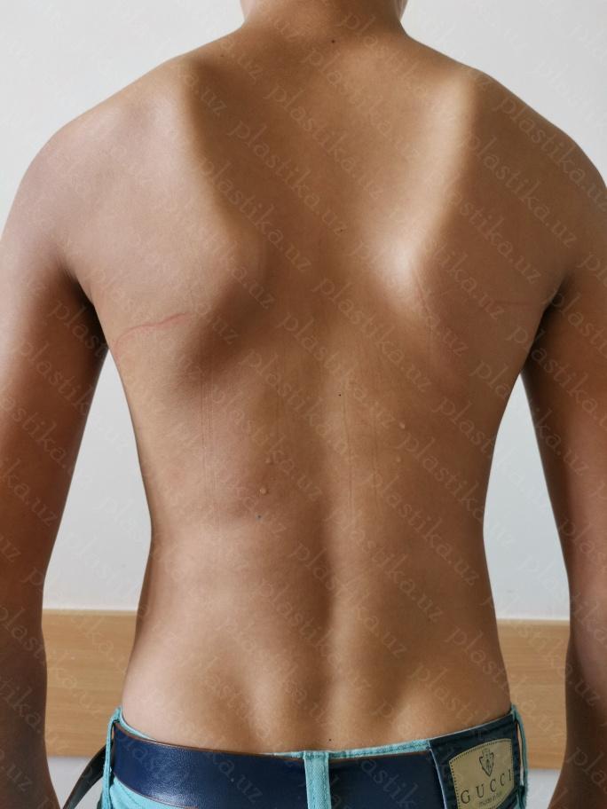 килевидная деформация грудной клетки