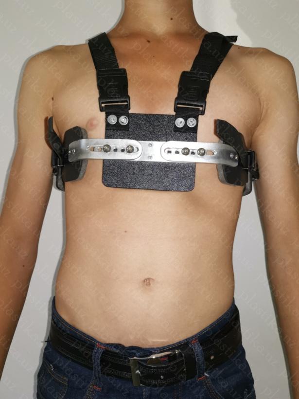 Килевидная деформация груди