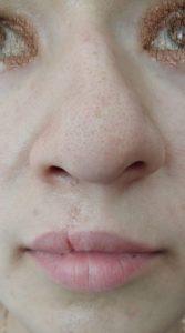 искривленный нос