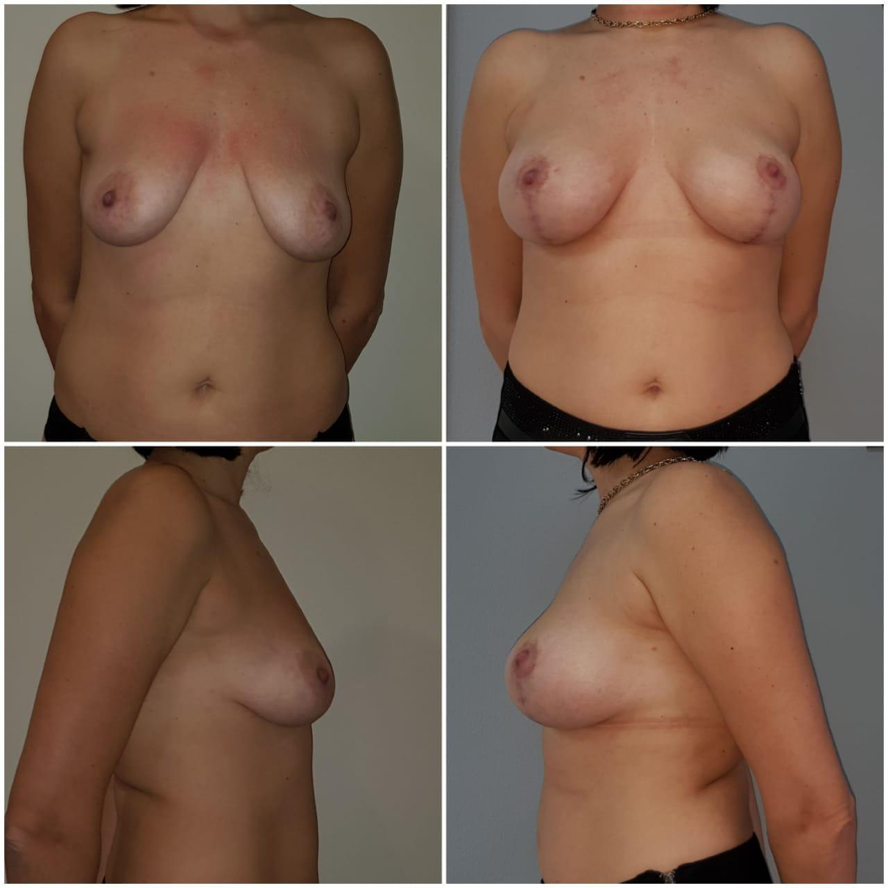 Увеличение груди с вертикальной подтяжкой