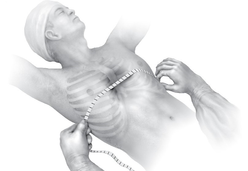 evaluation of chest before operation