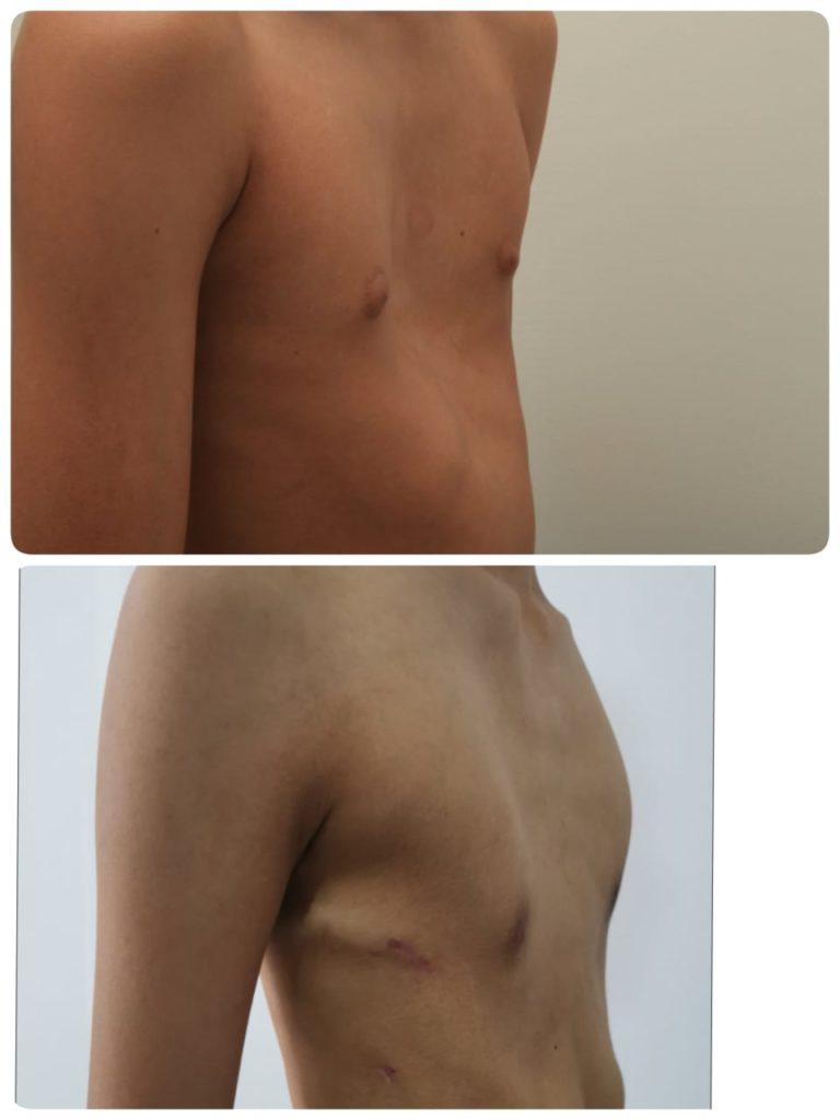 Воронкообразная деформация грудной клетки после операции