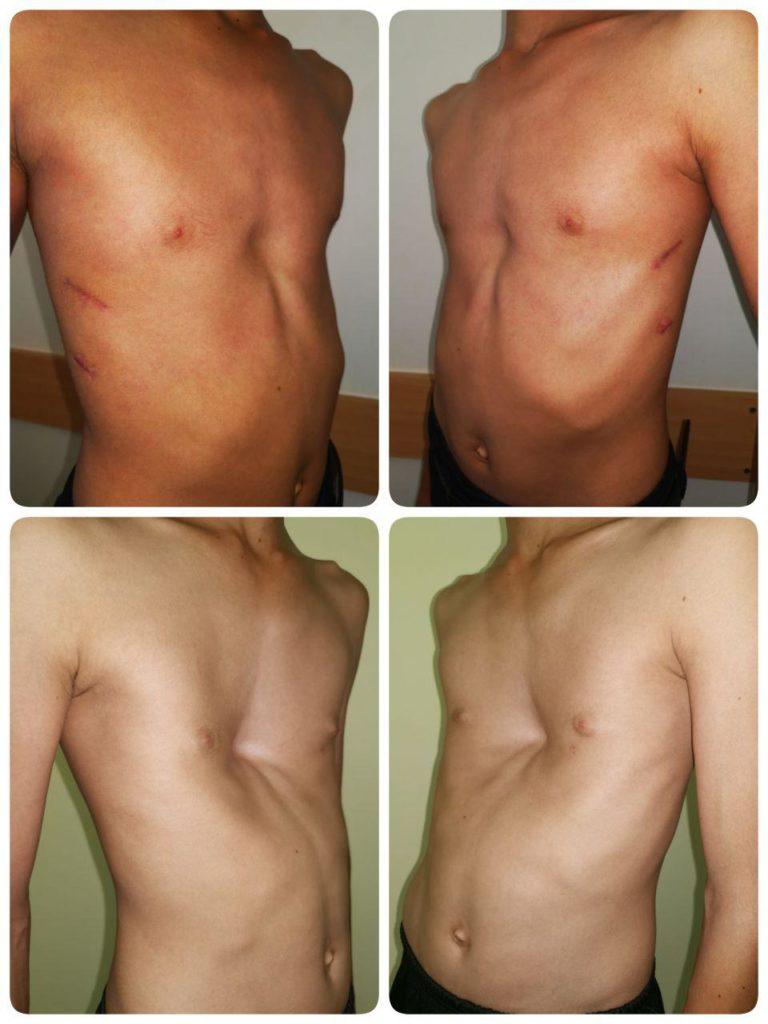 коррекция воронкообразной деформации грудной клетки Россия Узбекистан