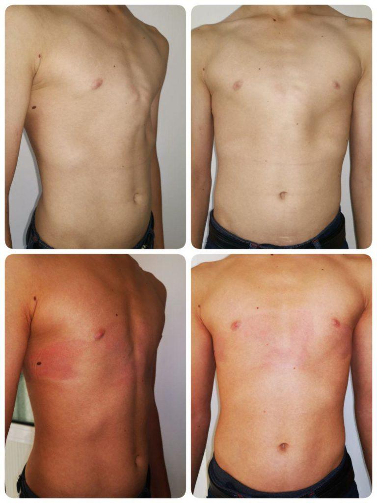 килевидная деформация грудной клетки после корсета Ферре результат
