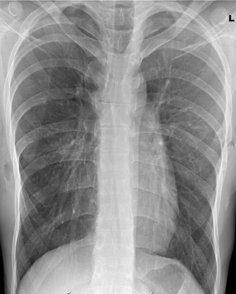 control x-ray