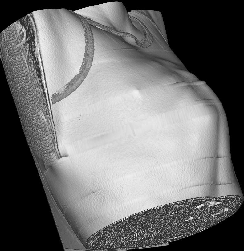 Килевидная деформация грудной клетки компьютерная томография 3D