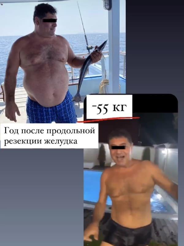 убрать лишний вес в Ургенче Узбекистан