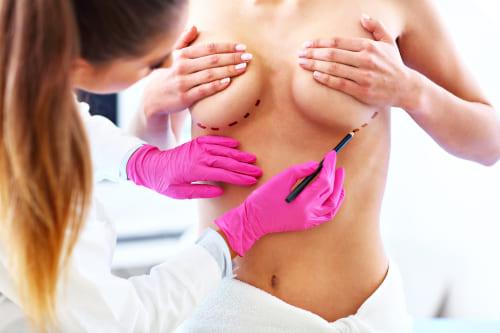 увеличение груди в Узбекистане