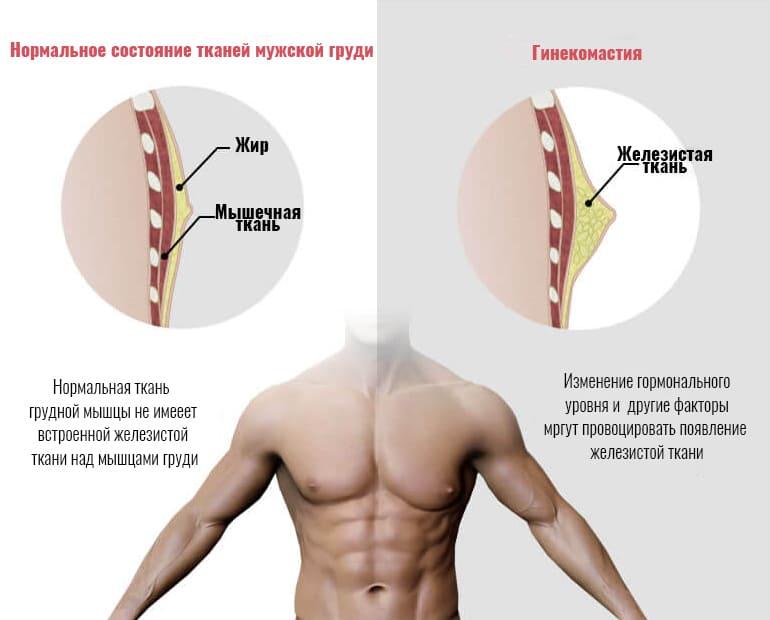 гинекомастия в Узбекистане