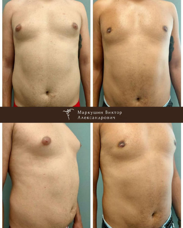 гинекомастия до и после операции